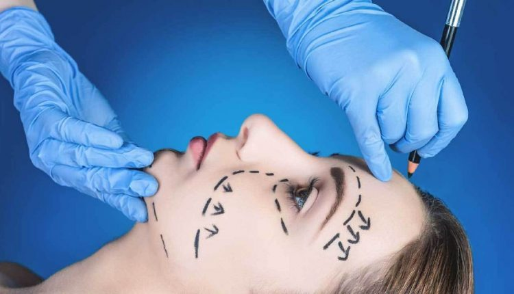 Influencing facial surgery
